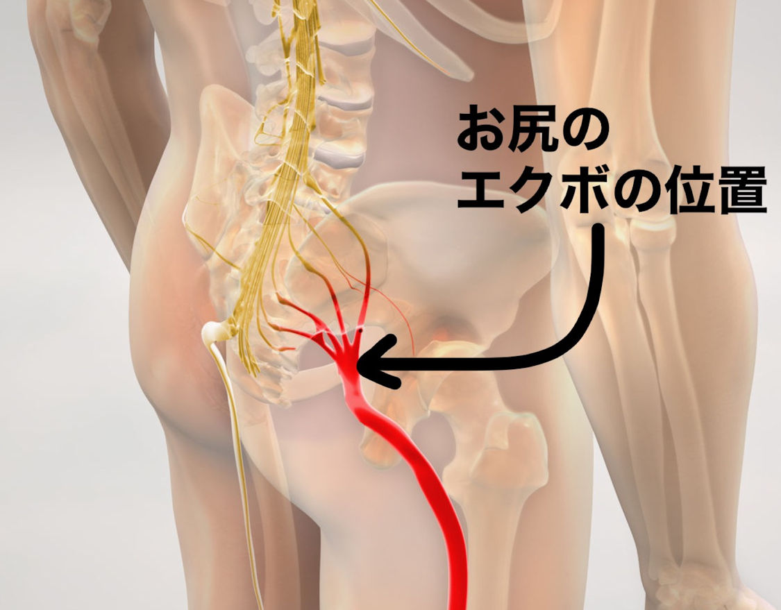 お尻のえくぼの位置と坐骨神経